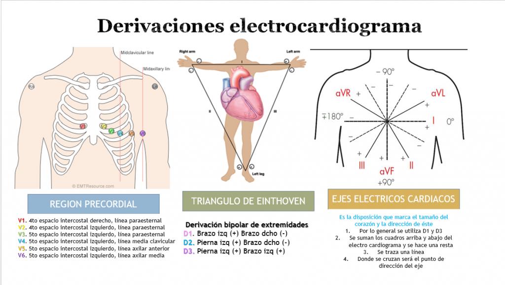 Derivaciones electrocardiografía
